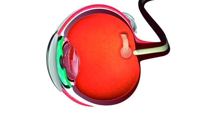 desarrollan-protesis-de-retina-basadas-en-grafeno_image_380