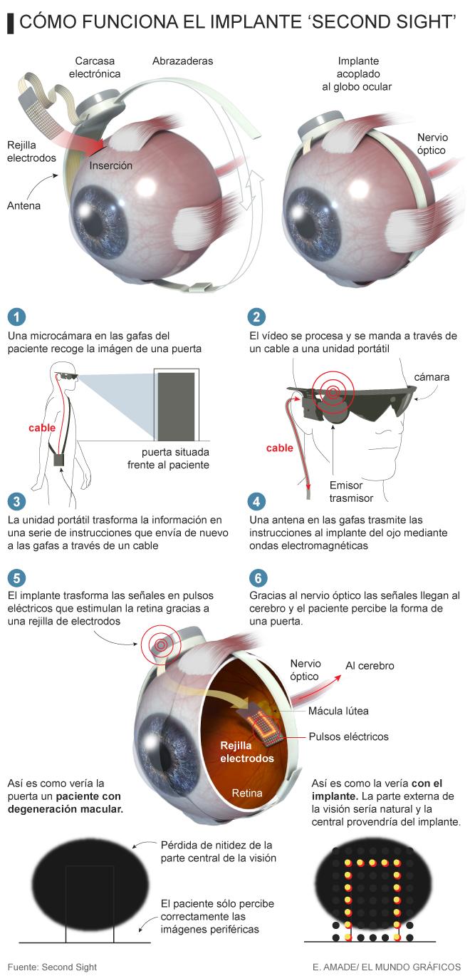 esquema ojo bionico.png